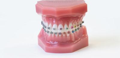 KFO Wolbeck, feste Zahnspange mit bunten Gummis